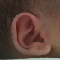 infant ear infection