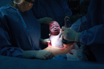 Picture of C-Section 4