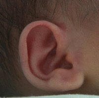 infant fever ear